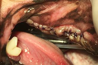 抜歯を行った症例